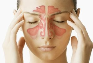 Sinusitis Treatment in Noida