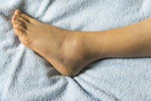 Edema & Swelling