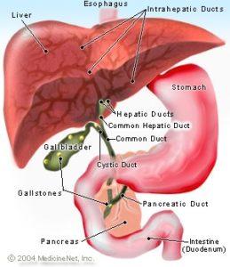 Gall bladder stone