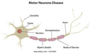 MND treatment in noida