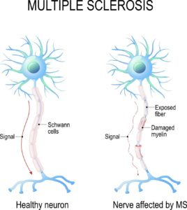 multiple sclerosis Treatment in Noida