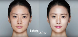 Face Glow Treatment in Noida